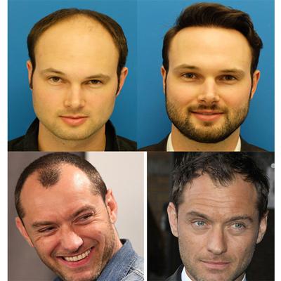 افکار غلطی که در مورد کاشت موی طبیعی