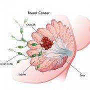 بیماری سرطان سینه