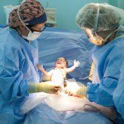 جراحی سزارین