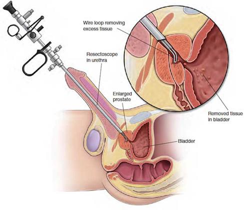 جراحی پروستات