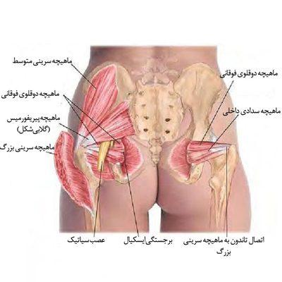 درمان بیماری التهاب لگن