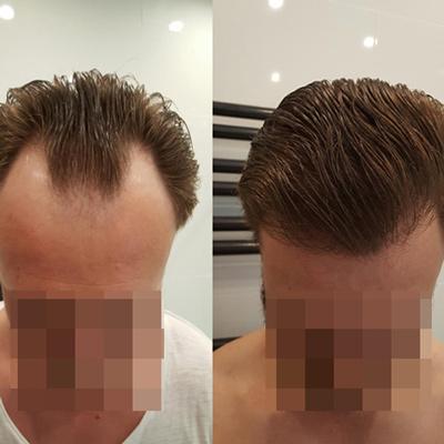 کاشت مو با تکنیک FUE