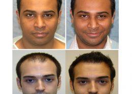 کاشت مو بدون جراحی