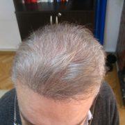 هزینه کاشت مو به روش BHT
