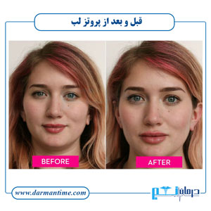 عکس قبل و بعد از پروتز لب