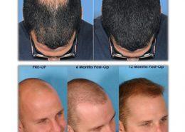 کاشت مو به روش FUE