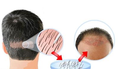 جوش های روی سطح سر بعد از کاشت مو