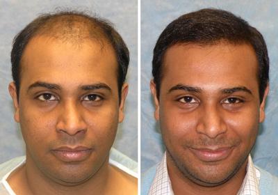 کاشت مو بدون عمل جراحی