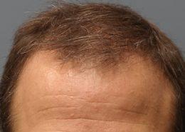 هزینه کاشت مو به روش HRT