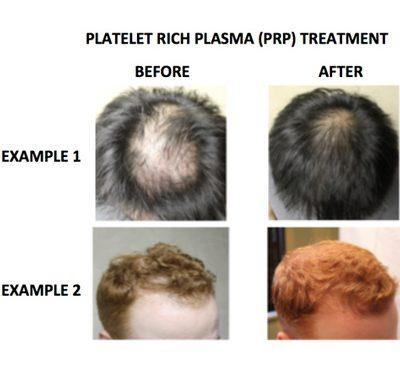 هزینه کاشت مو به روش prp
