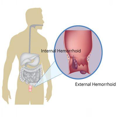 بیماری هموروئید در افراد شاغل