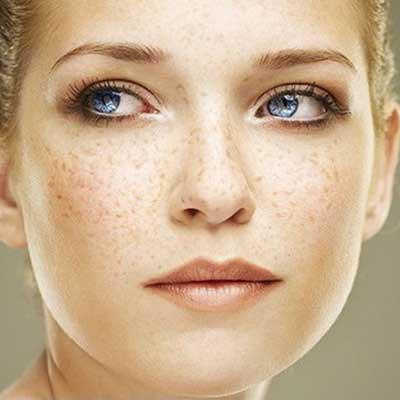 علل ایجاد کک و مک روی پوست