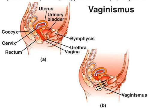 واژینیسموس