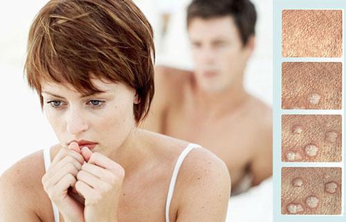 درمان زگیل تناسلی در زنان