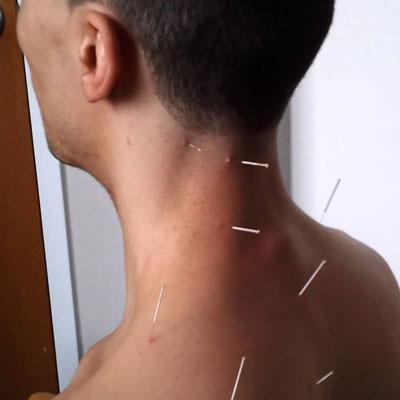 طب سوزنی درد گردن