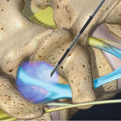 تزریق اپیدورال به گردن