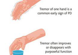 لرزش دست
