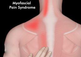 سندروم درد میوفاشیال