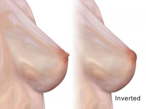 عمل اصلاح نوک پستان فرورفته