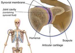 دررفتگی مفصل شانه