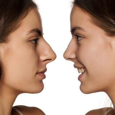 حفظ عملکرد بینی بعد از جراحی بینی