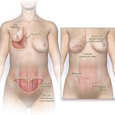 بازسازی سینه