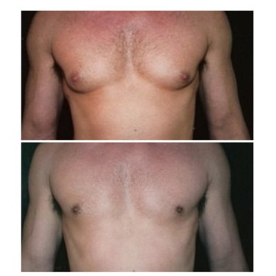 جراحی کوچک کردن سینه مردان