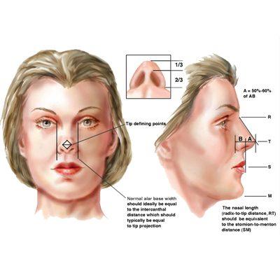نتایج جراحی رینوپلاستی