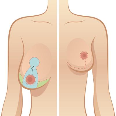 عمل کوچک کردن سینه