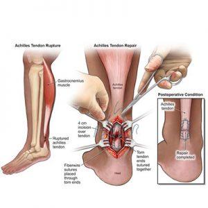 درمان پارگی تاندون پا