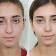 رعایت نکات مهم بعد از عمل زیبایی بینی