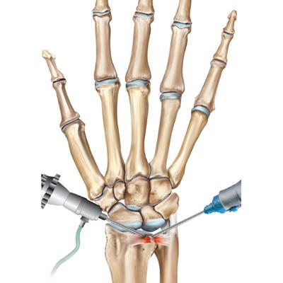 عمل تعویض مفصل مچ دست