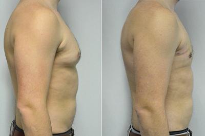 عمل کوچک کردن سینه مردان