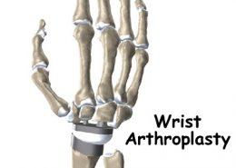 آرتروسکوپی مچ دست