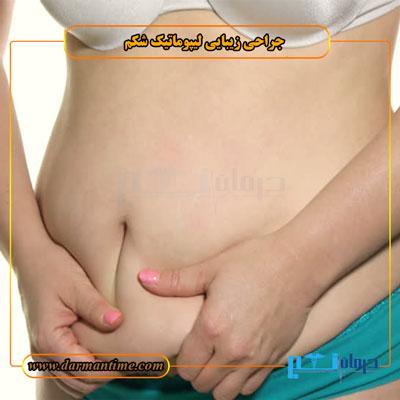 لیپوماتیک شکم