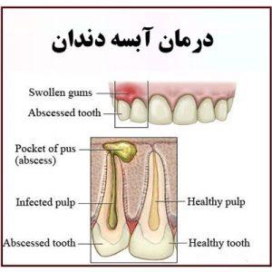 نحوه تخلیه آبسه دندان