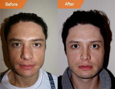 درمان افتادگی بینی