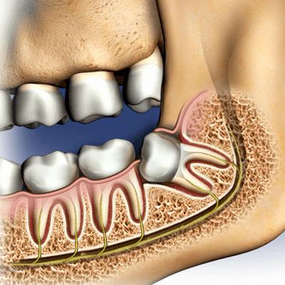 علل کشیدن دندان عقل