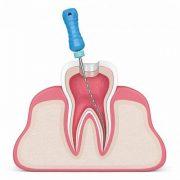 هزینه درمان ریشه دندان