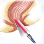 درمان بواسیر با لیزر