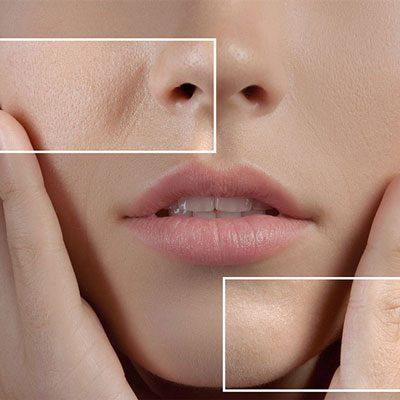 هزینه لیزر منافذ باز پوست