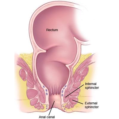 علائم سرطان مقعدی