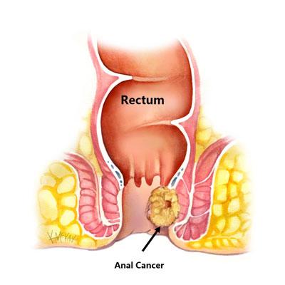سرطان مقعد