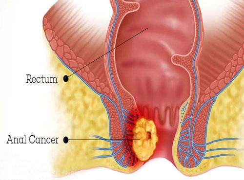 درمان سرطان مقعدی