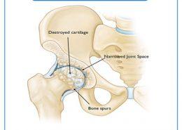 آرتروز و ساییدگی مفصل ران
