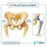 آرتروپلاستی ران برای چه کسی مفید است