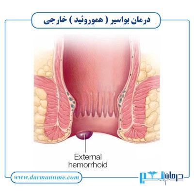 درمان بواسیر یا هموروئید خارجی