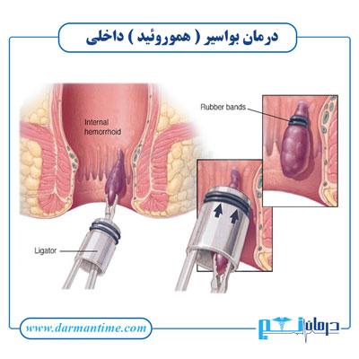 درمان بواسیر یا هموروئید داخلی