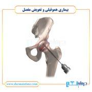 تعویض مفصل در بیماران هموفیلی