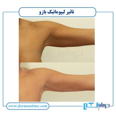 تاثیر لیپوماتیک بازو